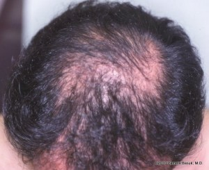 Male Baldness Pattern on Male Pattern Baldness