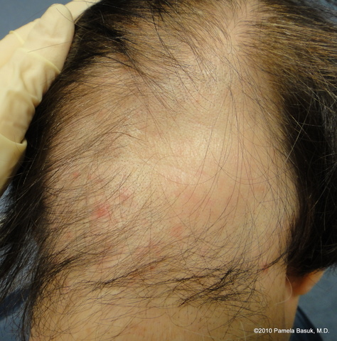Hairstyles For Alopecia Areata : Hair loss u2013 basuk dermatology