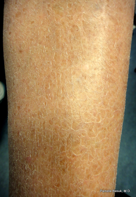 why skin becomes dry