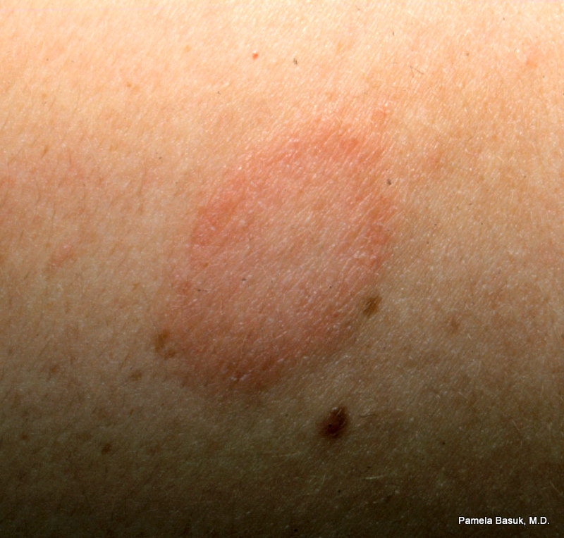 Herald patch in pityriasis rosea.