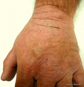 what is eczema and how do you treat it