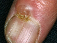 Myxoid Cyst affecting the nail growth