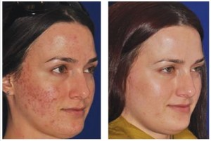 An acne scarred patient shown before and after Micropen treatments